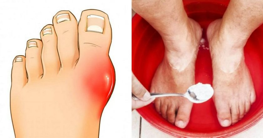 Результативность этого домашнего средства от артрита поразила даже опытных медиков!