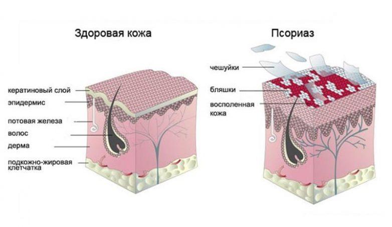 Всё, что нужно знать о псориазе