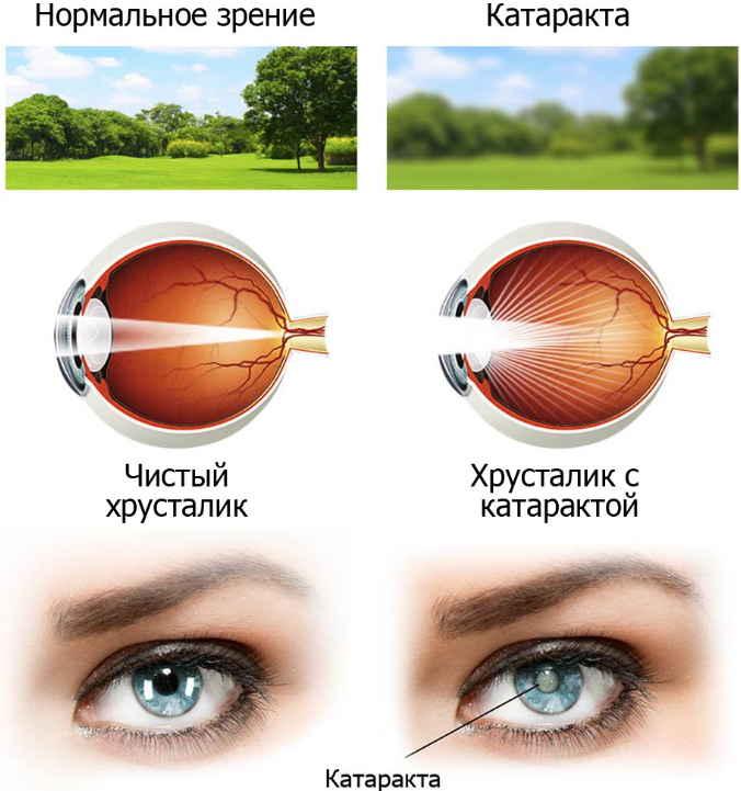 От катаракты простое лечение, в обычной травке — глаз спасение