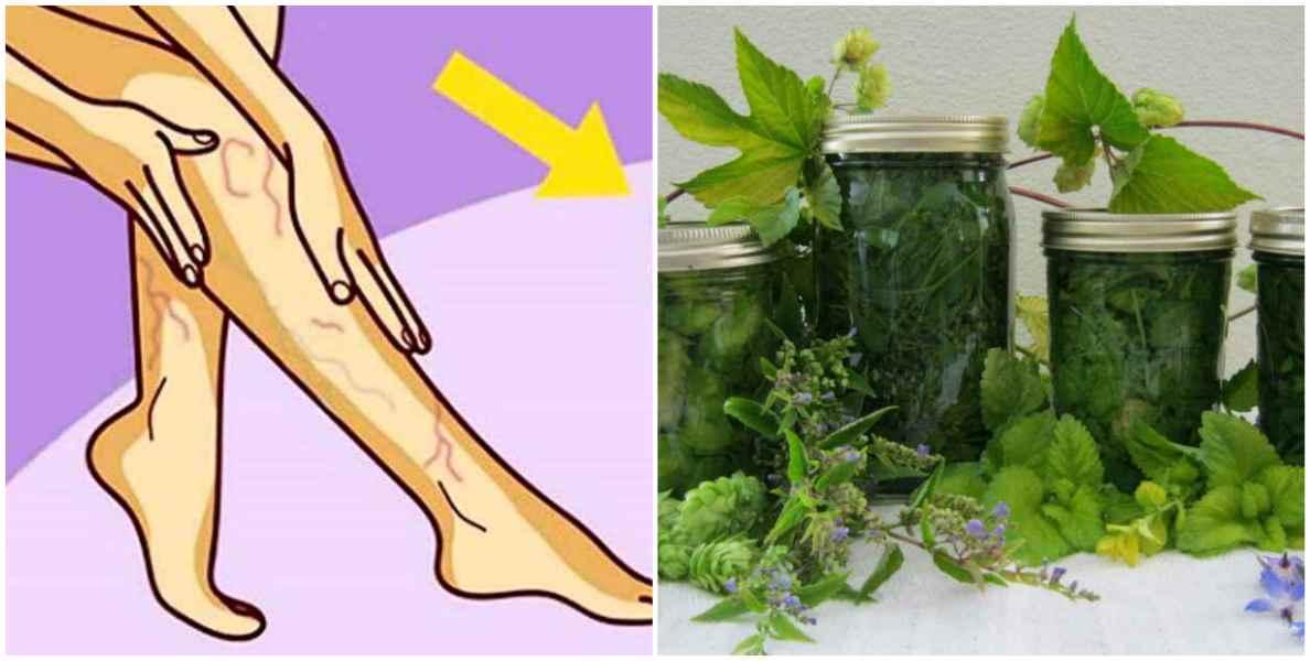 10 рецептов лечения варикоза и тромбофлебита травами, что растут под ногами