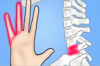 7 причин возникновения онемения рук