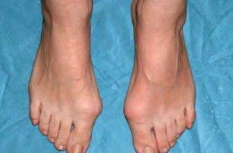 8 народных рецептов от шишек на ногах