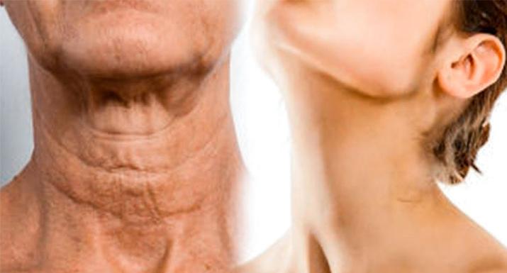 Простые способы о том, как заставить шею выглядеть моложе — это просто потрясающе