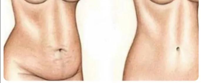 Cмесь, с помощью которой вы потеряете 5 кг и 15 см в талии всего за 4 дня