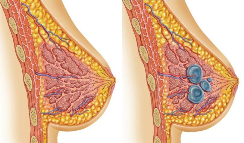 Фибромы, миомы и щитовидка: 10 рецептов лечения от знахаря