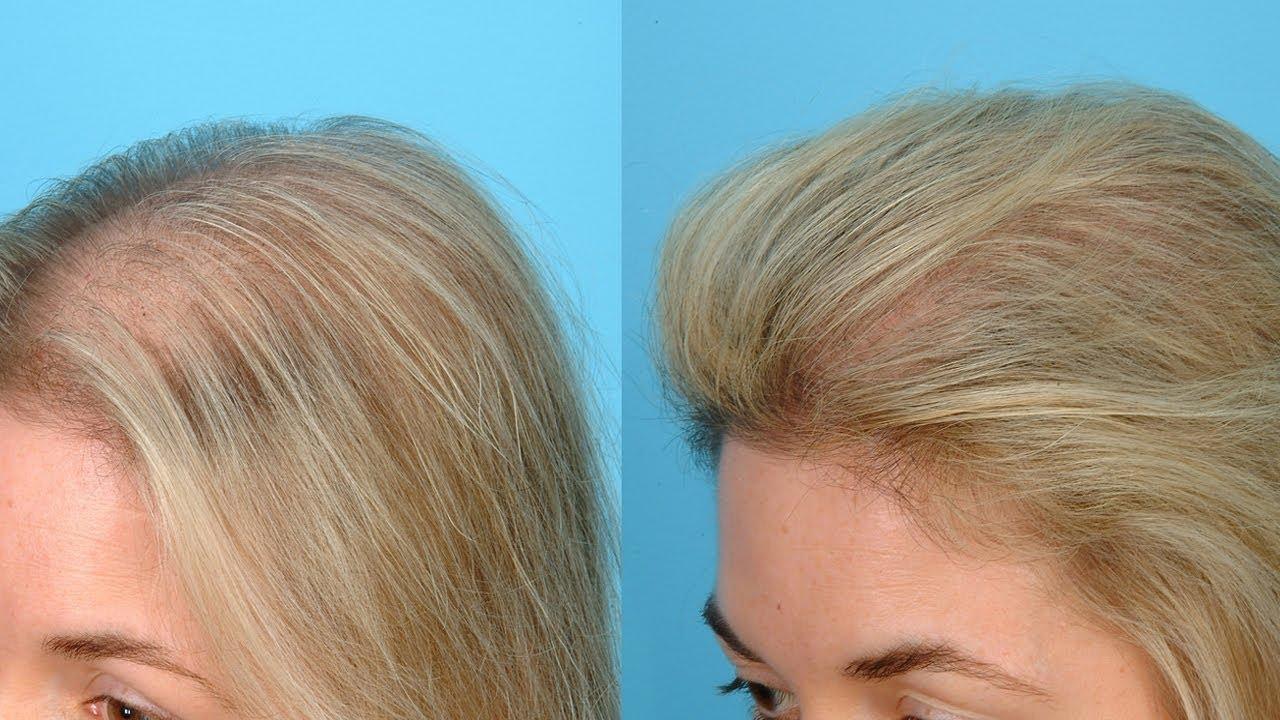 Волосы растут как сумасшедшие — длинные, густые и блестящие
