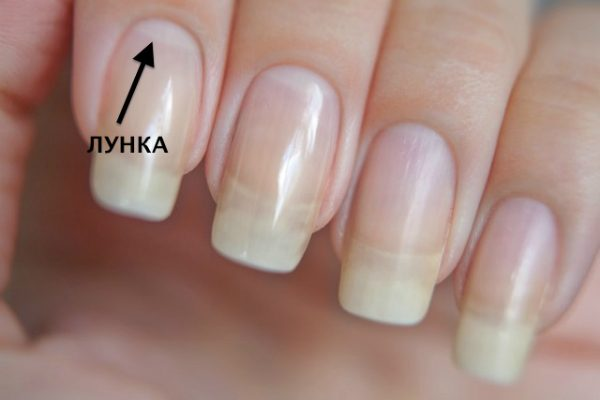 Почему исчезают белые лунки у основания ногтя