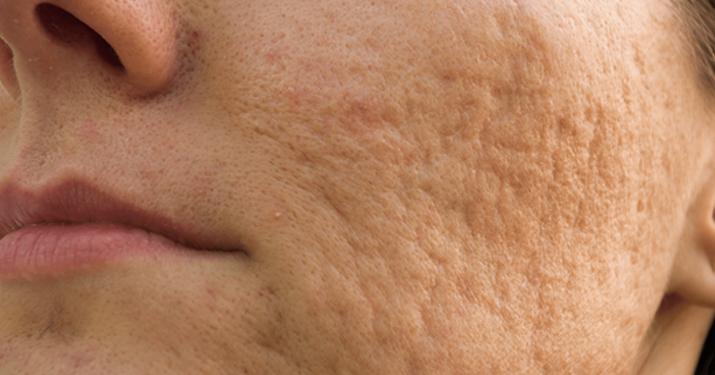 7 действующих способов устранения шрамов от акне