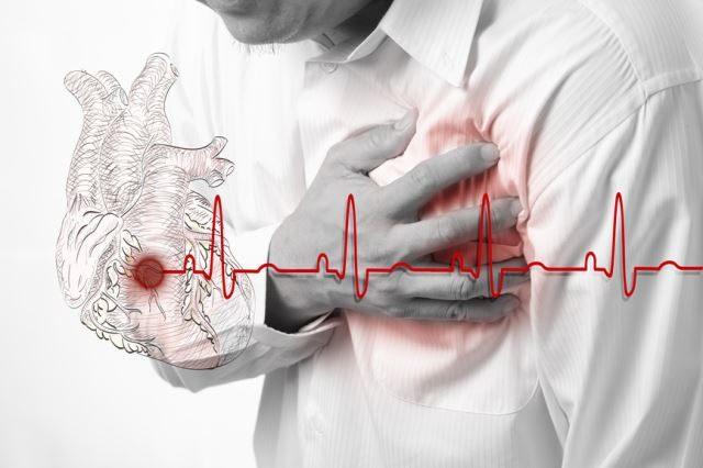 Инфаркт и ваш образ жизни