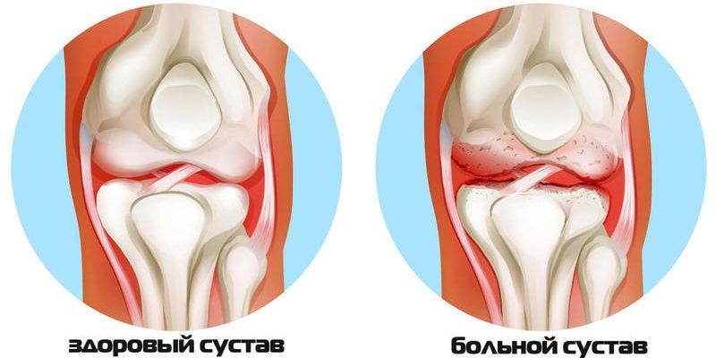 Что делать при артритах, артрозах? Бесценные рекомендации восточной медицины!