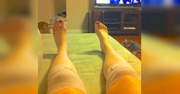 Лечение коленных суставов народными средствами