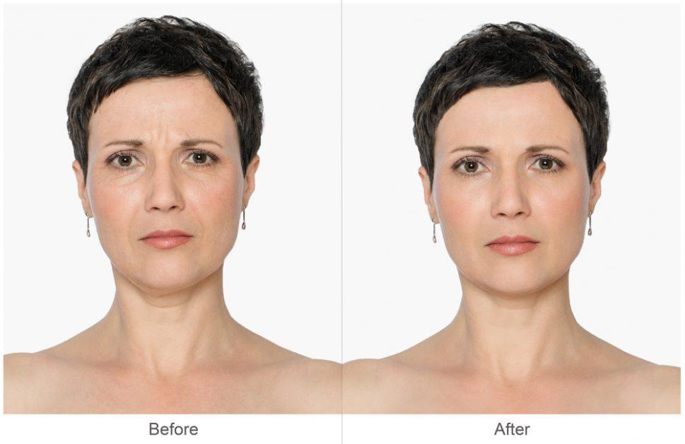Календарь ухода за собой: какие процедуры на самом деле нужно делать у косметолога в 25, 30, 40, 50 и 60 лет