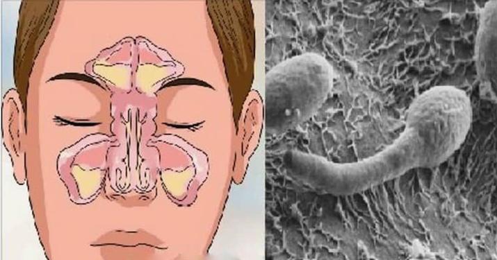 Проблема вашего заложенного носа находится в вашем кишечнике!