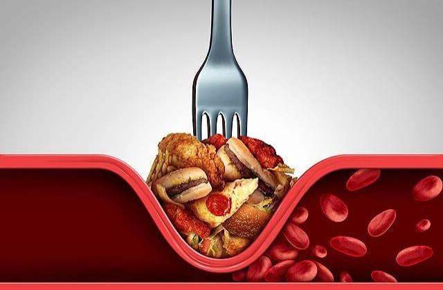 6 домашних средств, которые легко очистят стенки артерий