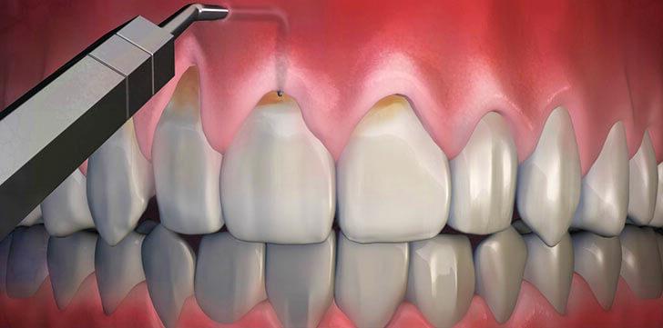Что нужно делать, чтобы вернуть оголившую десну зуба на место?