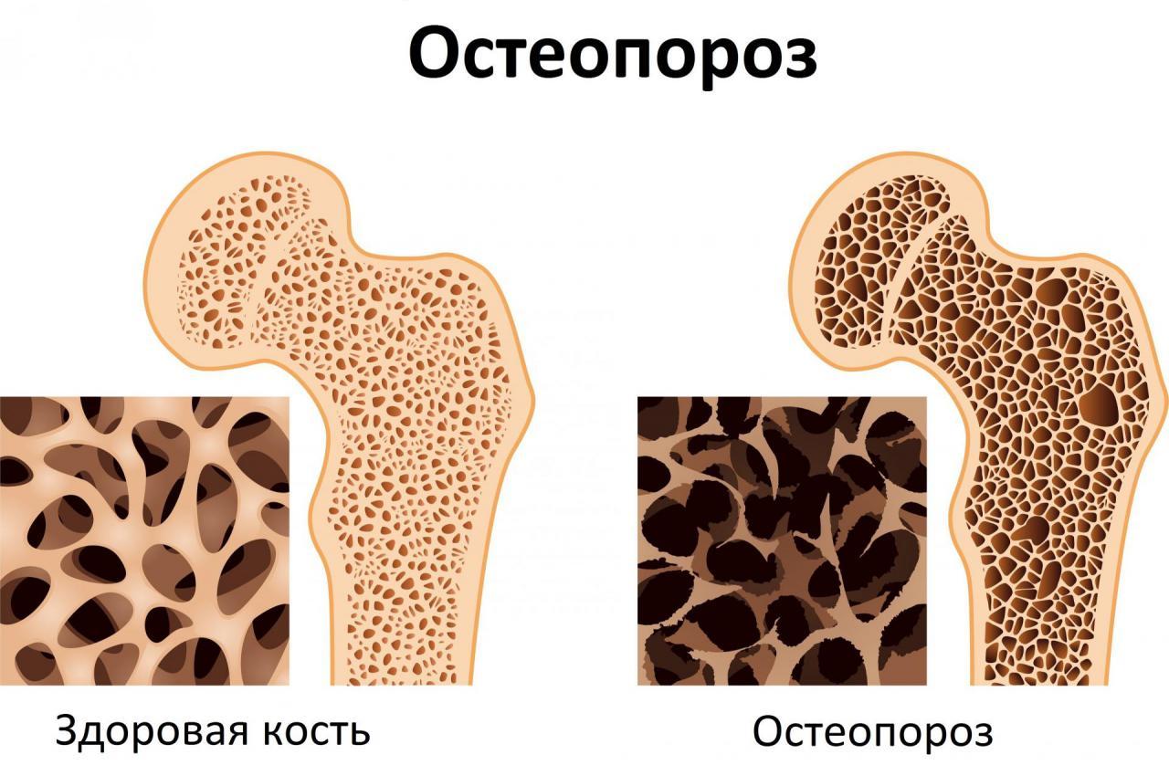 Берегите себя и близких! Советы и предложения по предотвращению остеопороза