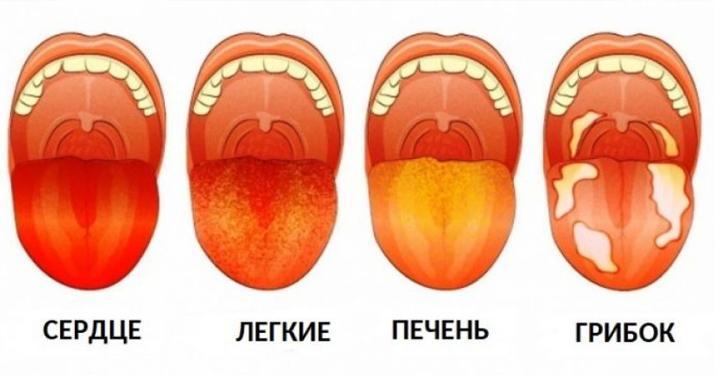 3 вещи, которые ваш язык пытается рассказать о вашем здоровье