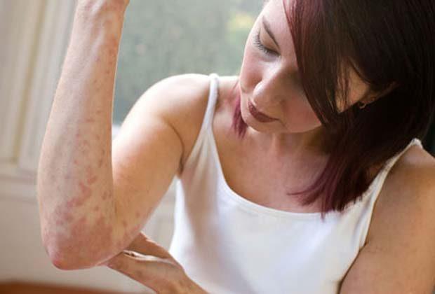 Эритразма: причины, симптомы, лечение