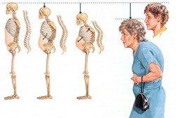 Диагностика и профилактика остеопороза