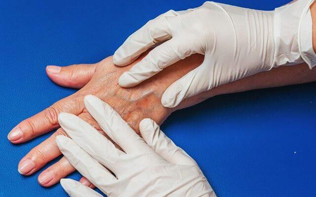 Почему проявляются вены на руках и болят