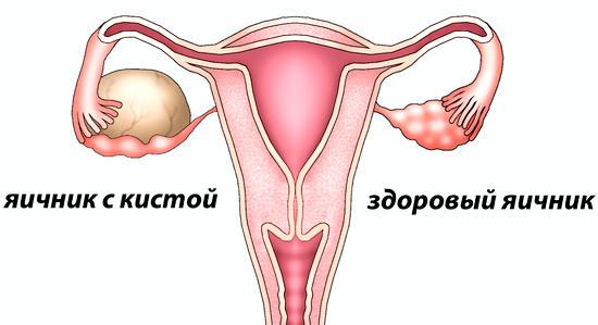 Киста яичника: что нужно знать женщинам после 40