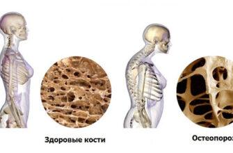 Связь остеопороза и микрофлоры кишечника: секрет, как сохранить активность в любом возрасте
