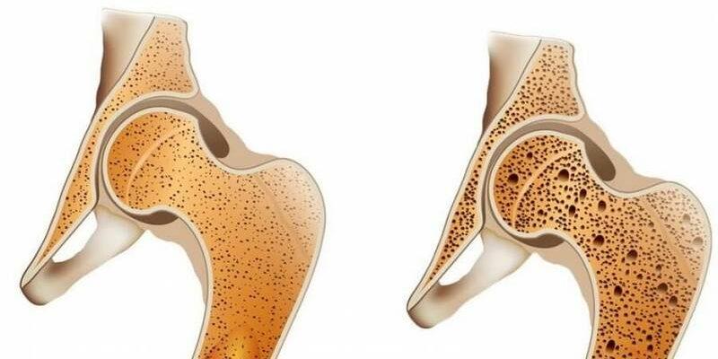 Вся правда об остеопорозе